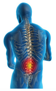 Image of man with back pain | What is Bowen Technique?